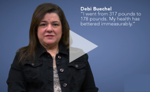 "Debbie B ""I went from 317lbs to 178lbs."""